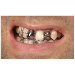 Czarny wosk na zęby